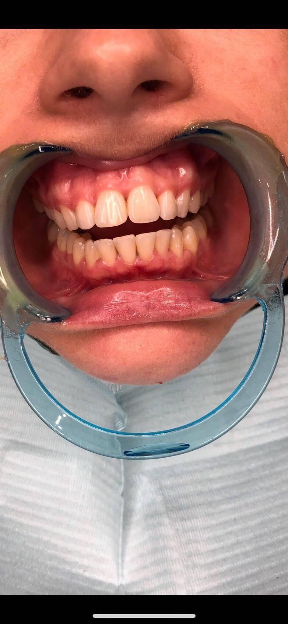 Teeth Whitening Logan